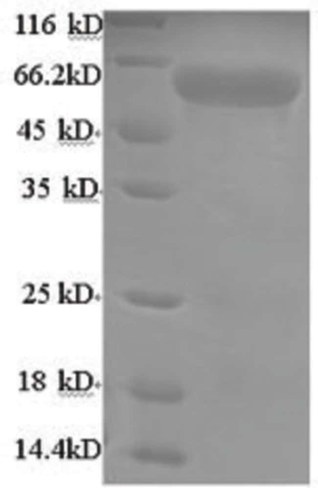 enQuireBio™ Recombinant Mouse Adck2 Protein 10μg enQuireBio™ Recombinant Mouse Adck2 Protein