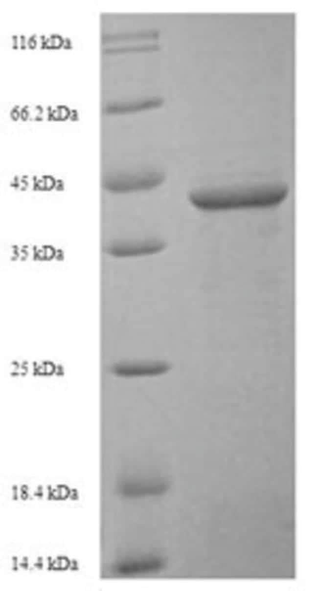 enQuireBio™Recombinant Human Sialic acid-binding Ig-like lectin 15 Protein 200μg enQuireBio™Recombinant Human Sialic acid-binding Ig-like lectin 15 Protein