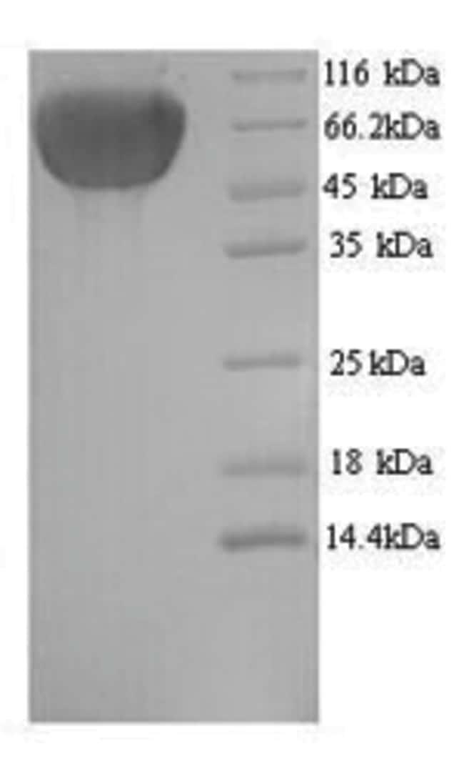 enQuireBio™Recombinant Human Cytokeratin, Acidic Protein 1mg enQuireBio™Recombinant Human Cytokeratin, Acidic Protein