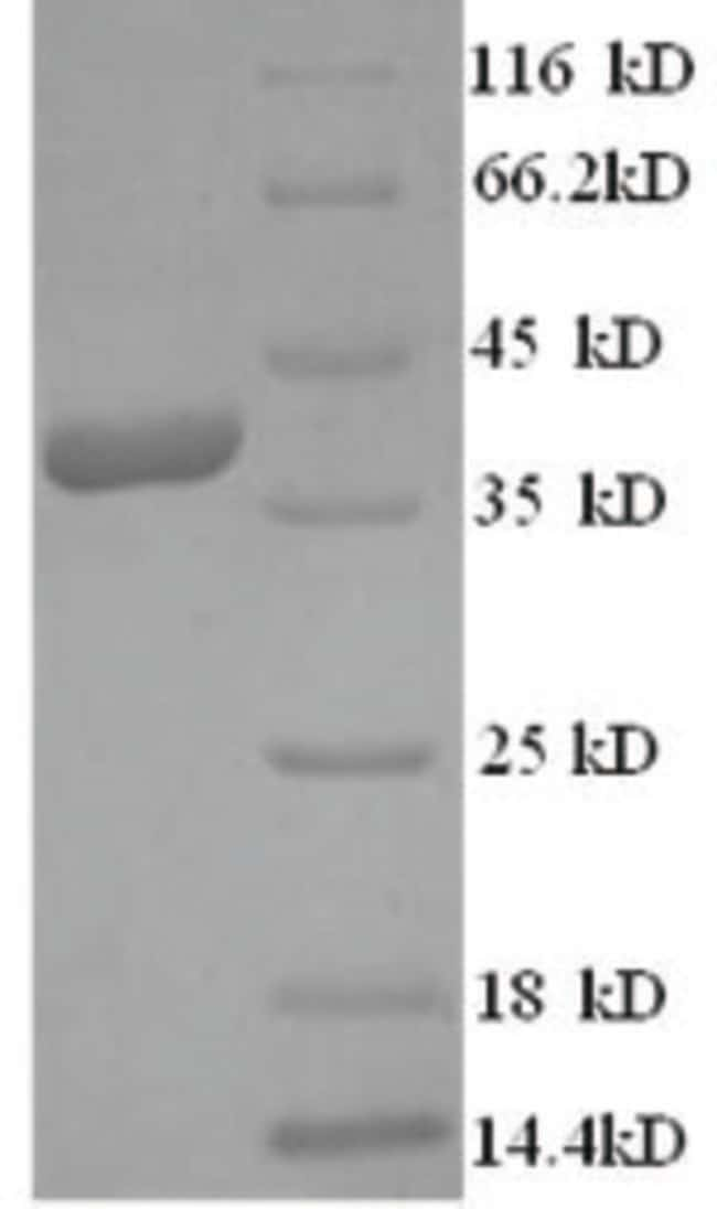 enQuireBio™ Recombinant Human Ly6 / PLAUR domain-containing protein 1 500μg enQuireBio™ Recombinant Human Ly6 / PLAUR domain-containing protein 1