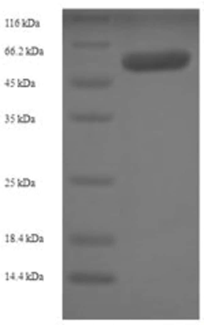 enQuireBio™Recombinant Human Src kinase-associated phosphoprotein 1 500μg enQuireBio™Recombinant Human Src kinase-associated phosphoprotein 1
