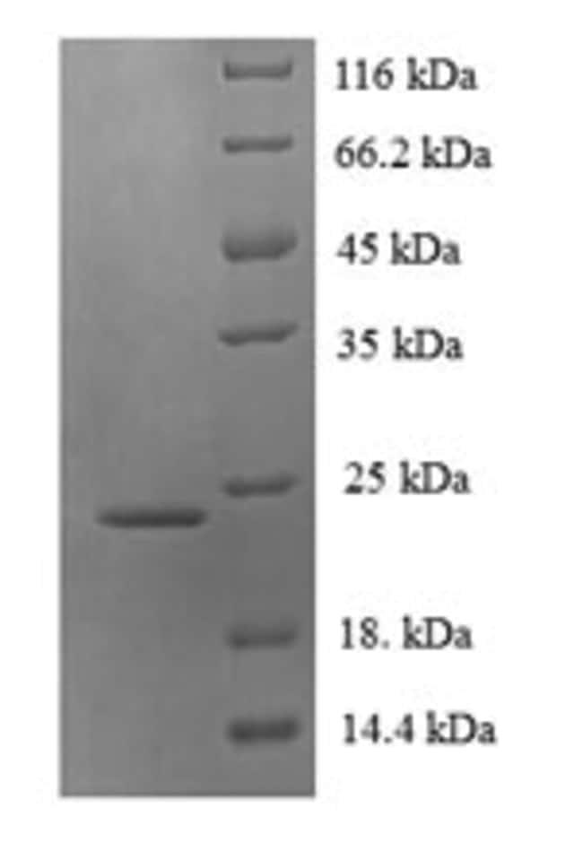enQuireBio™Recombinant Chimpanzee LTB / TNFSF3 / Lymphotoxin beta Protein 100μg enQuireBio™Recombinant Chimpanzee LTB / TNFSF3 / Lymphotoxin beta Protein