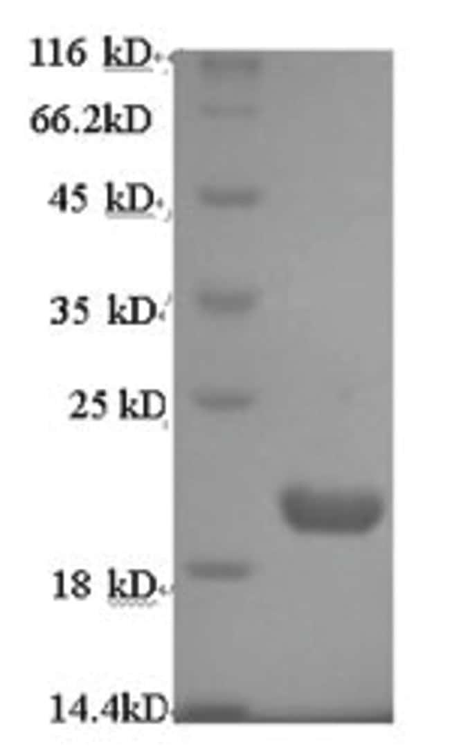 enQuireBio™Recombinant Human Protein prune homolog Protein 50μg enQuireBio™Recombinant Human Protein prune homolog Protein