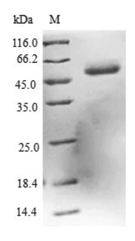 enQuireBio™Recombinant Human DCXR / HCR2 Protein 500μg enQuireBio™Recombinant Human DCXR / HCR2 Protein