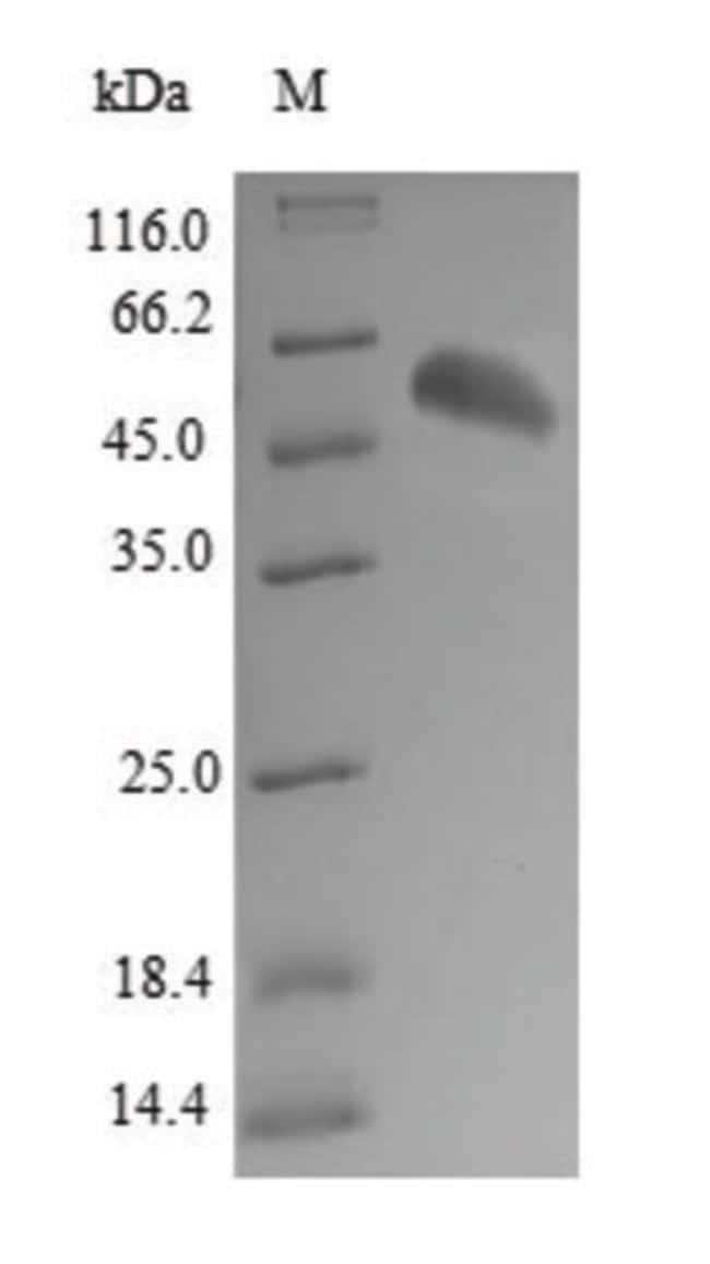 enQuireBio™Recombinant Human BPHL Protein 500μg enQuireBio™Recombinant Human BPHL Protein