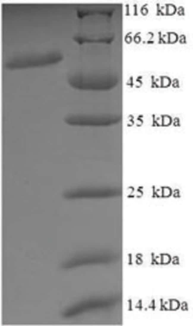 enQuireBio™Recombinant Human Vacuolar fusion protein MON1 homolog A Protein 10μg enQuireBio™Recombinant Human Vacuolar fusion protein MON1 homolog A Protein