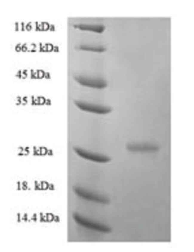 enQuireBio™ Recombinant Human Interferon epsilon Protein 200μg enQuireBio™ Recombinant Human Interferon epsilon Protein