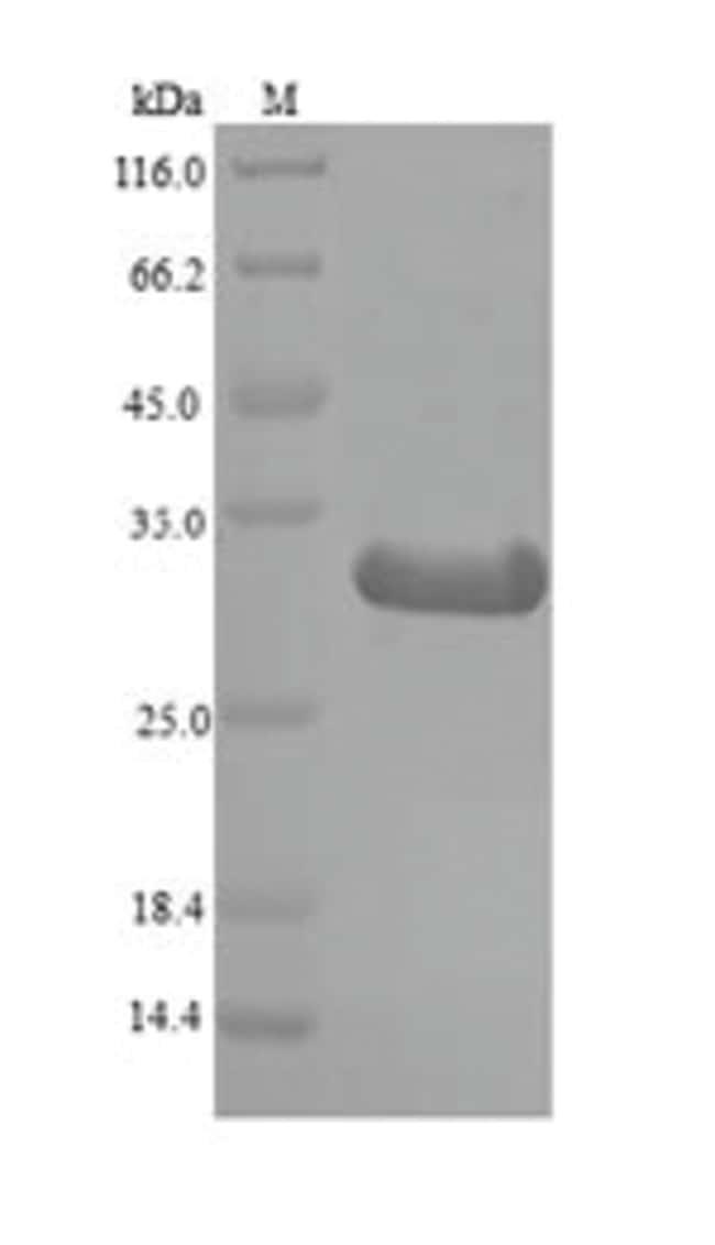 enQuireBio™Recombinant Mouse Histone deacetylase complex subunit SAP130 Protein 10μg enQuireBio™Recombinant Mouse Histone deacetylase complex subunit SAP130 Protein
