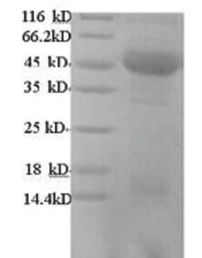 enQuireBio™Recombinant Human m7GpppN-mRNA hydrolase Protein 500μg enQuireBio™Recombinant Human m7GpppN-mRNA hydrolase Protein