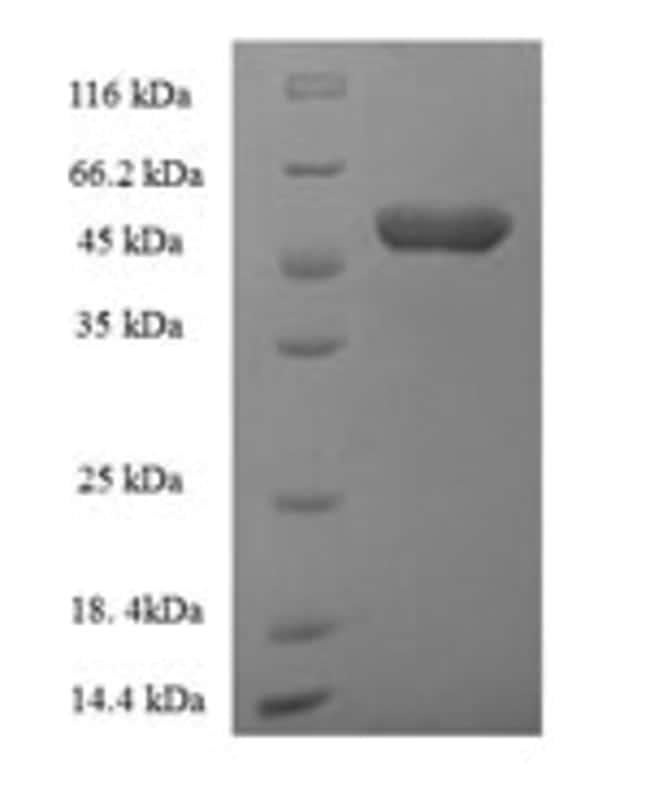 enQuireBio™Recombinant Human ACBD4 Protein 100μg enQuireBio™Recombinant Human ACBD4 Protein