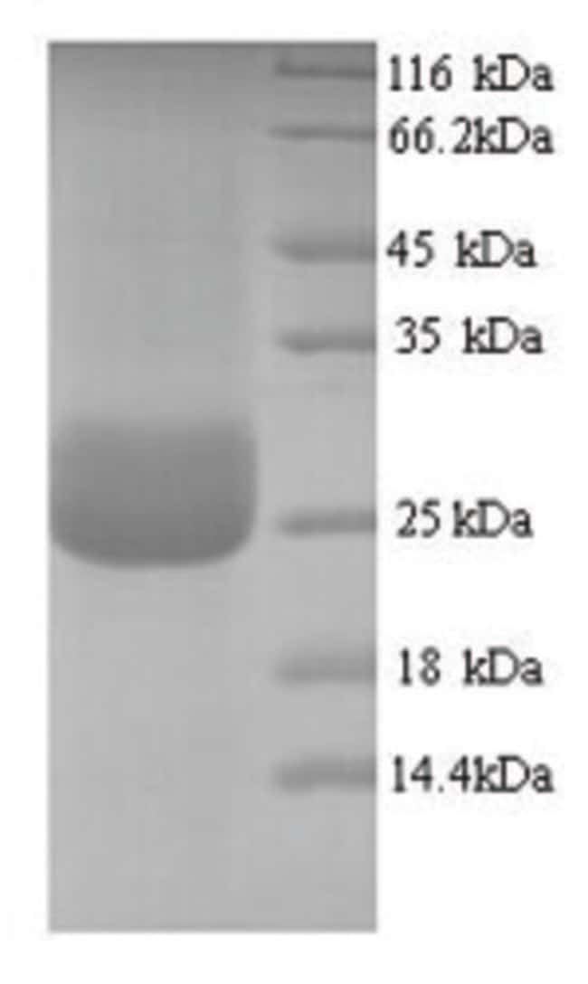 enQuireBio™ Recombinant Human CD300LF / LMIR3 Protein 100μg enQuireBio™ Recombinant Human CD300LF / LMIR3 Protein