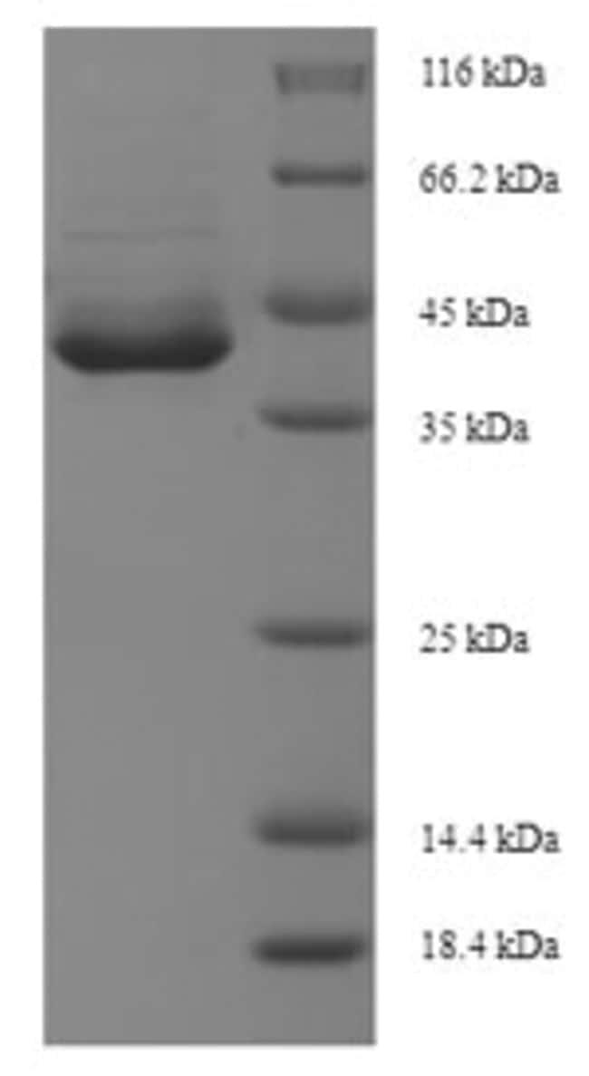 enQuireBio™Recombinant Human Apoptosis-enhancing nuclease Protein 10μg enQuireBio™Recombinant Human Apoptosis-enhancing nuclease Protein