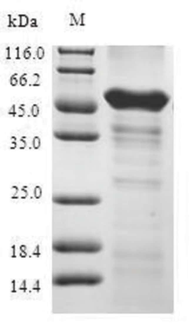 enQuireBio™Recombinant Human ABHD5 Protein: Proteínas A-Z Proteínas