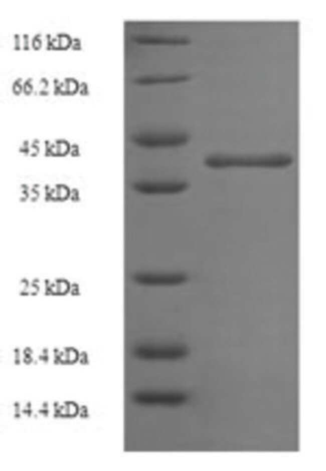enQuireBio™Recombinant Human Protein-lysine N-methyltransferase N6AMT2 Protein 200μg enQuireBio™Recombinant Human Protein-lysine N-methyltransferase N6AMT2 Protein