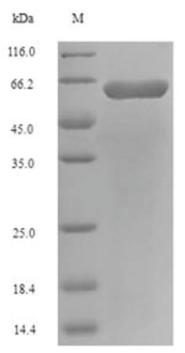 enQuireBio™ Recombinant E. coli Long-chain fatty acid transport Protein 10μg enQuireBio™ Recombinant E. coli Long-chain fatty acid transport Protein