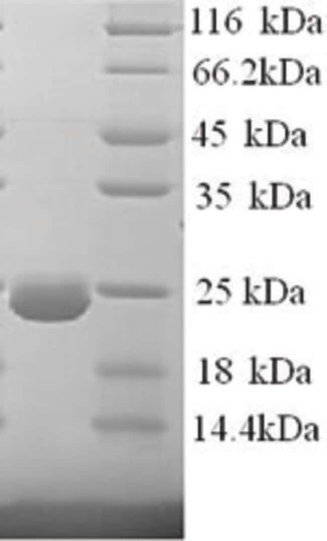 enQuireBio™ Recombinant Human Dystonin Protein 50μg enQuireBio™ Recombinant Human Dystonin Protein
