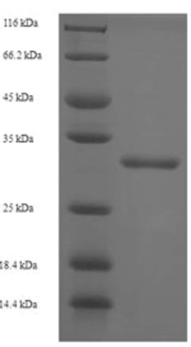 enQuireBio™Recombinant Human ST8SIA4 Protein 100μg enQuireBio™Recombinant Human ST8SIA4 Protein