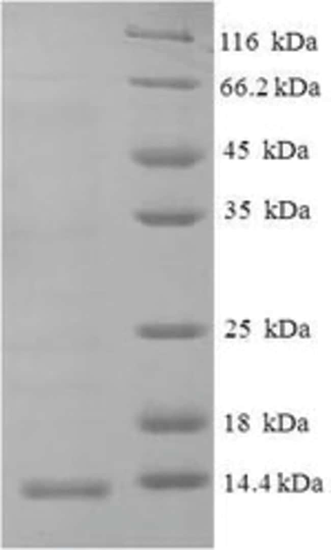 enQuireBio™Recombinant Macaque CXCL10 / Crg-2 Protein 100μg enQuireBio™Recombinant Macaque CXCL10 / Crg-2 Protein