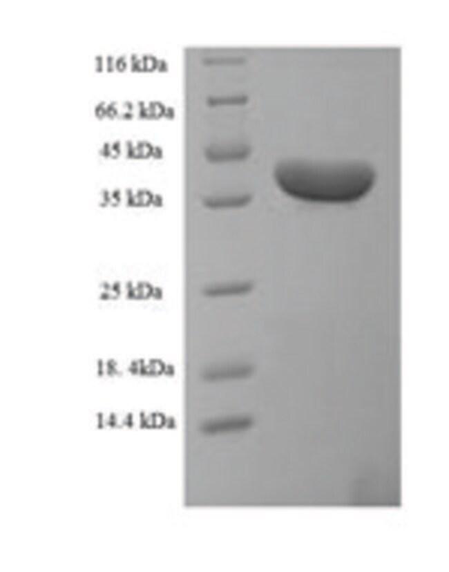 enQuireBio™Recombinant Human Uncharacterized protein C20orf197 Protein 200μg enQuireBio™Recombinant Human Uncharacterized protein C20orf197 Protein