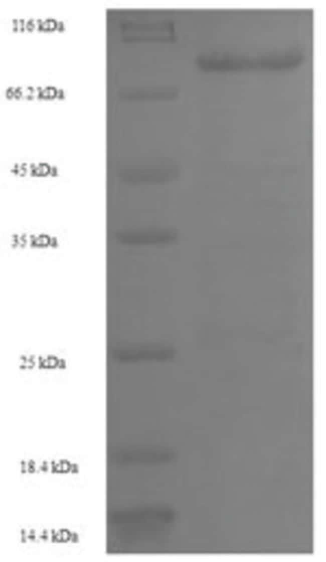 enQuireBio™Recombinant Human GALNT14 Protein 200μg enQuireBio™Recombinant Human GALNT14 Protein