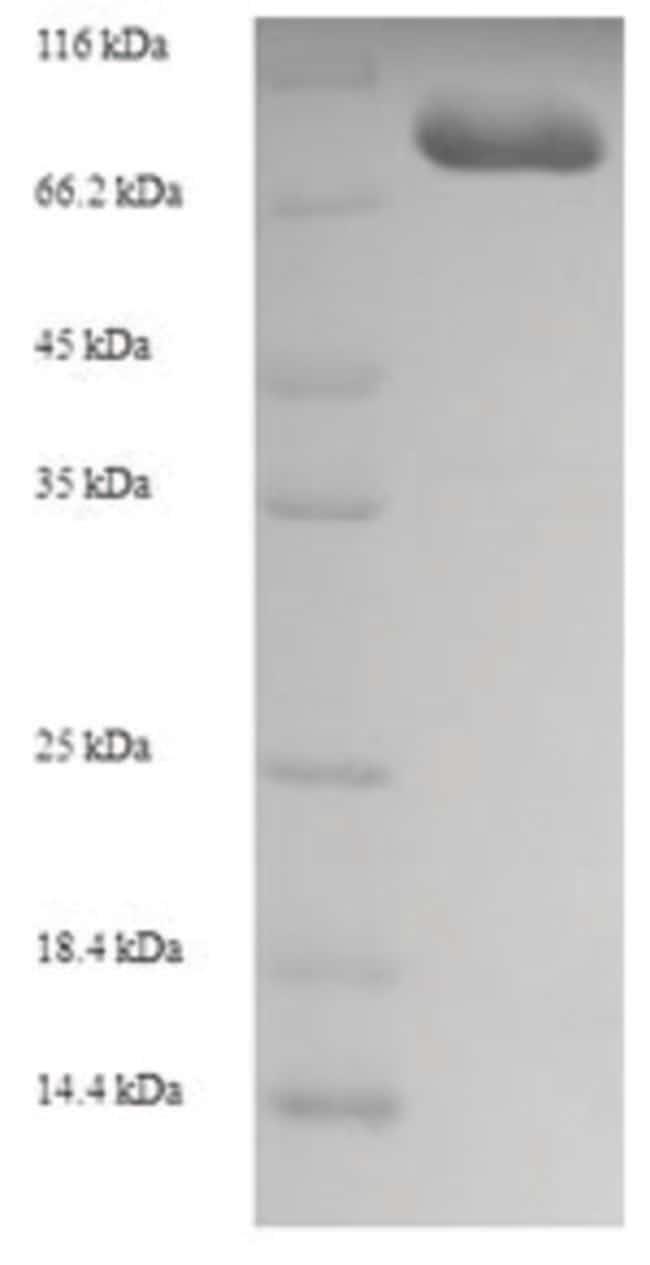 enQuireBio™Recombinant Human Unconventional myosin-XIX Protein 100μg enQuireBio™Recombinant Human Unconventional myosin-XIX Protein
