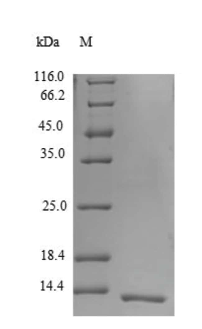 enQuireBio™Recombinant Human Beta-defensin 124 Protein 200μg enQuireBio™Recombinant Human Beta-defensin 124 Protein