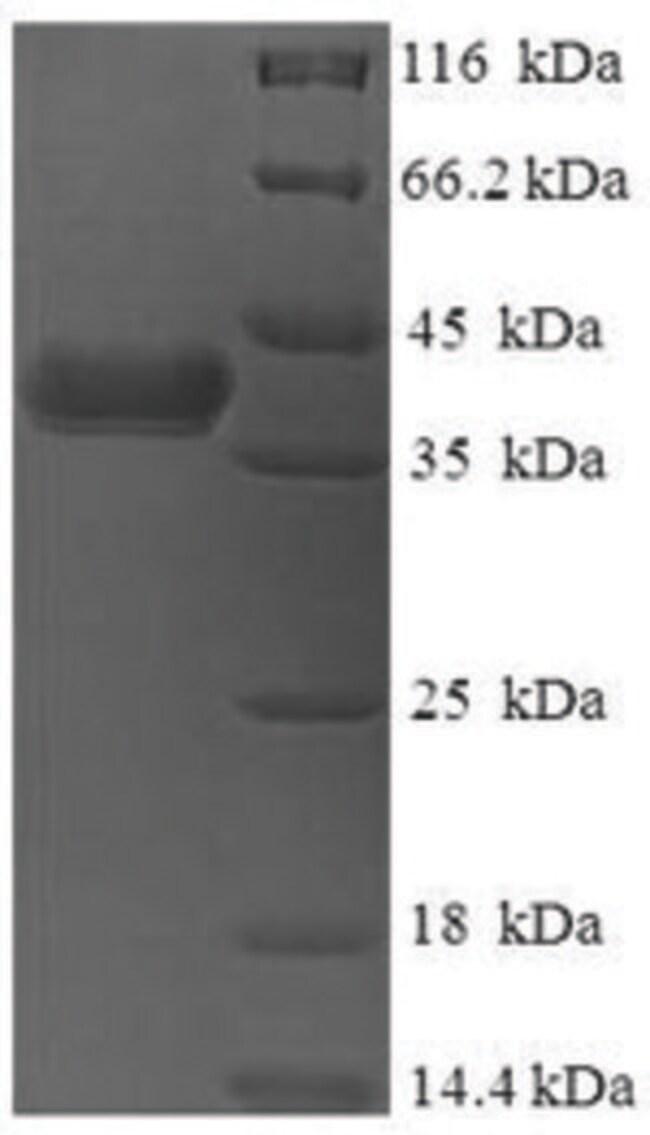 enQuireBio™Recombinant Human DnaJ homolog subfamily B member 8 Protein 10μg enQuireBio™Recombinant Human DnaJ homolog subfamily B member 8 Protein