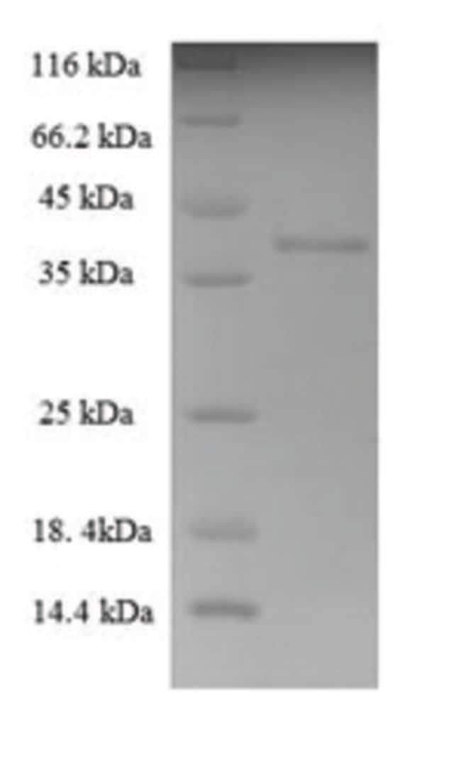 enQuireBio™Recombinant Human THAP domain-containing protein 1 200μg enQuireBio™Recombinant Human THAP domain-containing protein 1
