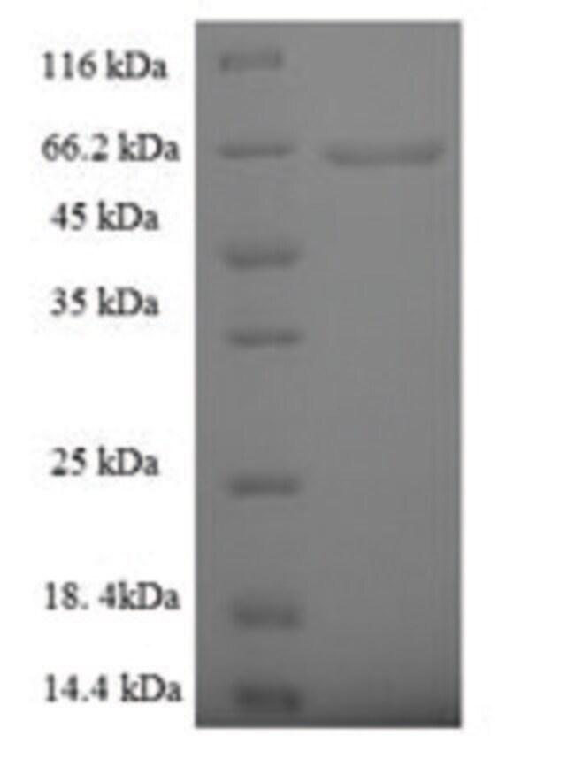 enQuireBio™Recombinant Human Phospholipase D4 Protein 1mg enQuireBio™Recombinant Human Phospholipase D4 Protein