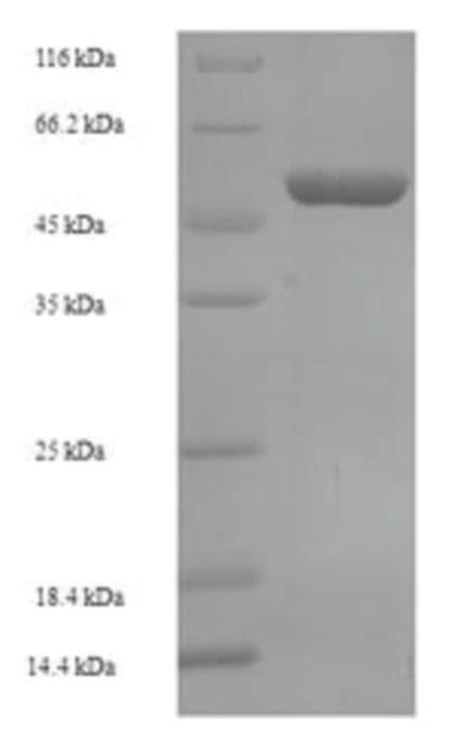 enQuireBio™Recombinant Human OXNAD1 Protein 500μg enQuireBio™Recombinant Human OXNAD1 Protein