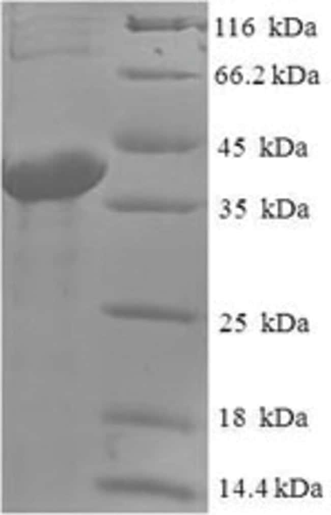 enQuireBio™Recombinant Human ABHD14B Protein 500μg enQuireBio™Recombinant Human ABHD14B Protein