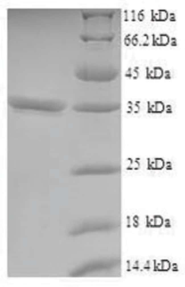 enQuireBio™Recombinant Human VSTM2L Protein 1mg enQuireBio™Recombinant Human VSTM2L Protein