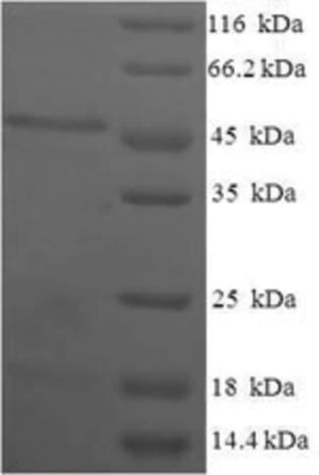 enQuireBio™Recombinant Human Estradiol 17-beta-dehydrogenase 11 Protein 500μg enQuireBio™Recombinant Human Estradiol 17-beta-dehydrogenase 11 Protein