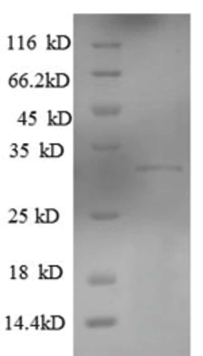 enQuireBio™Recombinant Human KLRG1 Protein 50μg enQuireBio™Recombinant Human KLRG1 Protein