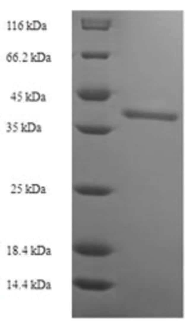 enQuireBio™Recombinant Human Butyrophilin subfamily 2 member A2 Protein 50μg enQuireBio™Recombinant Human Butyrophilin subfamily 2 member A2 Protein