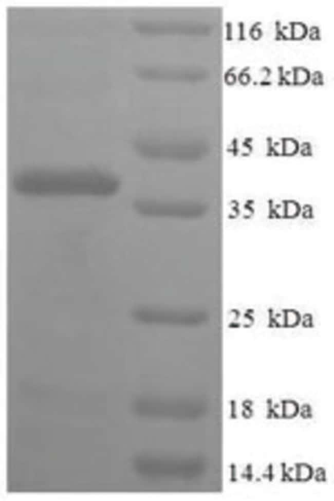 enQuireBio™Recombinant Human Fin bud initiation factor homolog Protein: Proteínas A-Z Proteínas