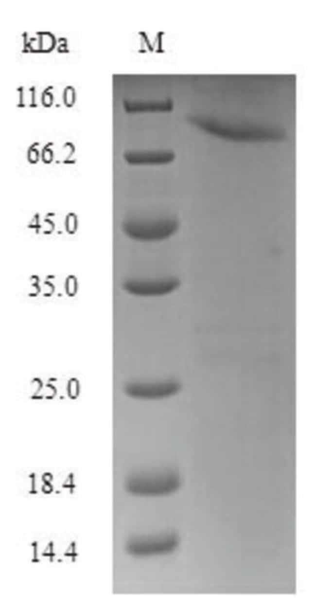 enQuireBio™Recombinant Human HSPB1-associated protein 1 100μg enQuireBio™Recombinant Human HSPB1-associated protein 1