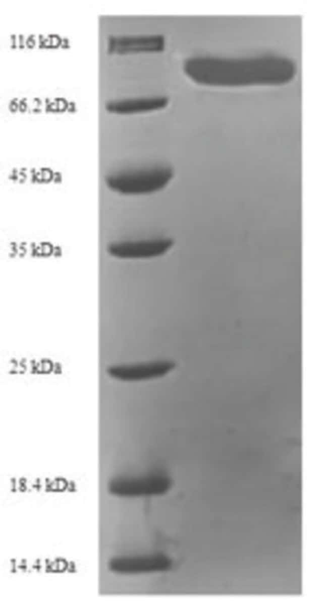 enQuireBio™Recombinant Human MAPKAP1 Protein 100μg enQuireBio™Recombinant Human MAPKAP1 Protein