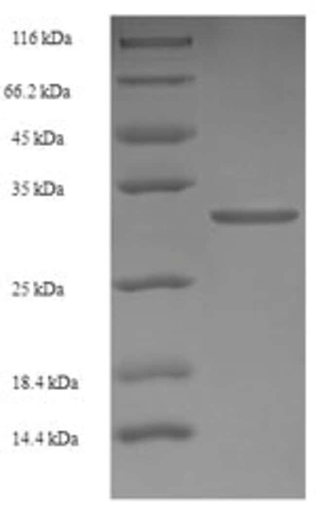 enQuireBio™Recombinant Human RARRES2 / Chemerin Protein 100μg enQuireBio™Recombinant Human RARRES2 / Chemerin Protein