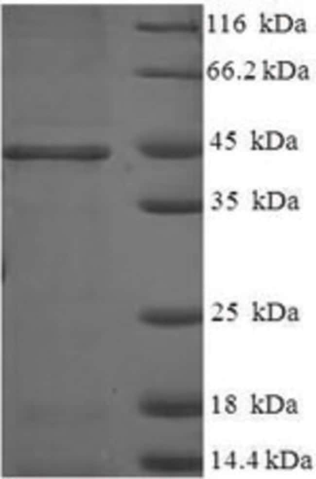 enQuireBio™ Recombinant Human HSD17B14 Protein 200μg enQuireBio™ Recombinant Human HSD17B14 Protein