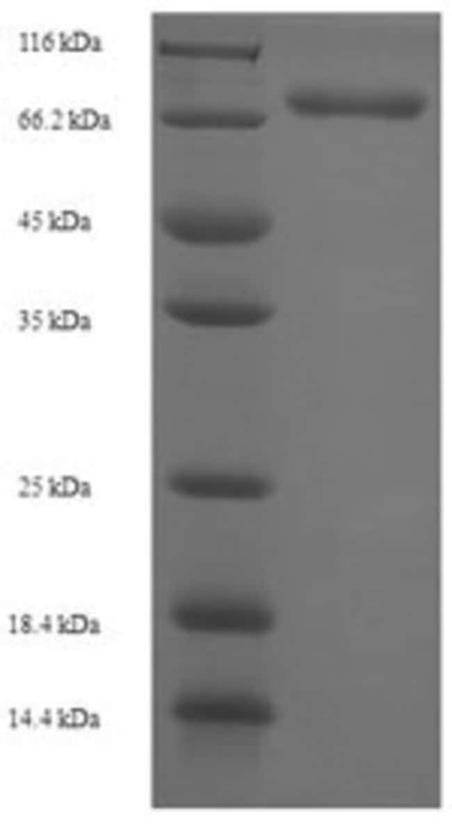 enQuireBio™Recombinant Human Diphthamide biosynthesis protein 1 1mg enQuireBio™Recombinant Human Diphthamide biosynthesis protein 1