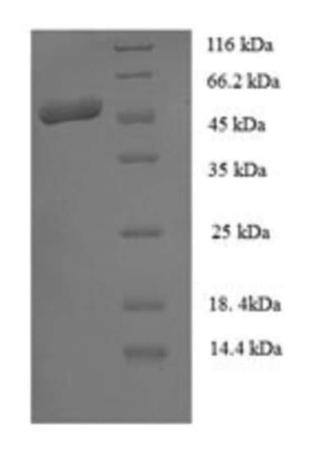 enQuireBio™Recombinant S. aureus Staphopain B Protein: Proteínas A-Z Proteínas