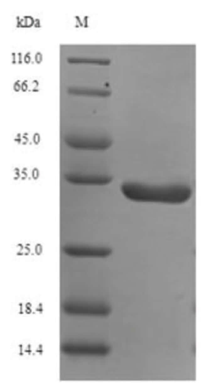 enQuireBio™Recombinant Human PARK7 / DJ-1 Protein 1mg enQuireBio™Recombinant Human PARK7 / DJ-1 Protein