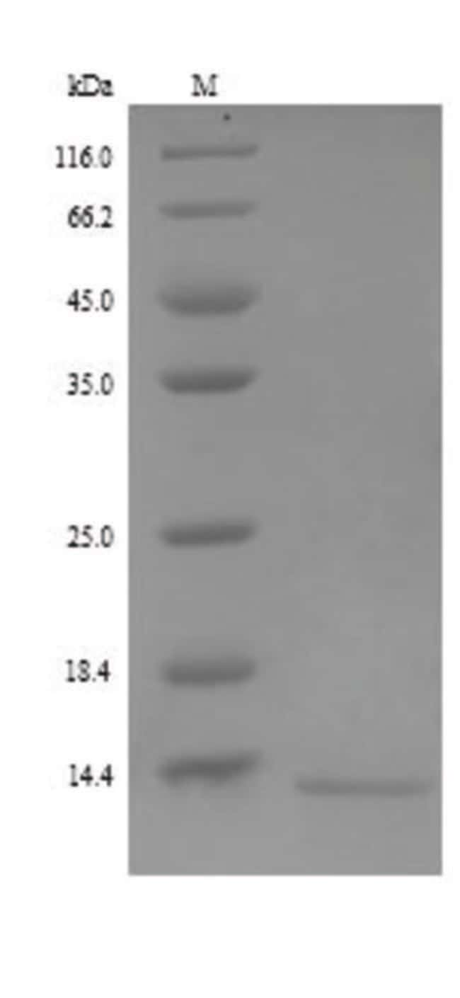 enQuireBio™Recombinant Human Retnlb Protein 500μg enQuireBio™Recombinant Human Retnlb Protein