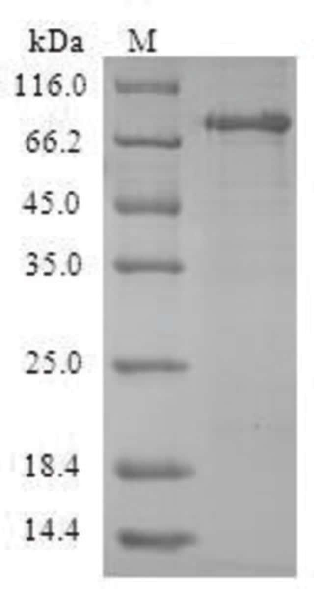enQuireBio™Recombinant Human ACY1 / Aminoacylase-1 Protein 200μg enQuireBio™Recombinant Human ACY1 / Aminoacylase-1 Protein