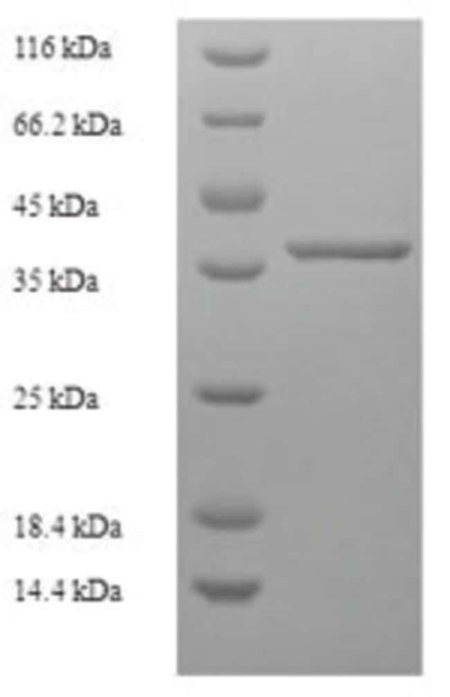 enQuireBio™ Recombinant Human MLX-interacting Protein 500μg enQuireBio™ Recombinant Human MLX-interacting Protein