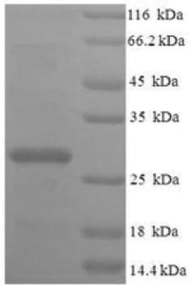 enQuireBio™Recombinant Human 39S ribosomal protein L20, mitochondrial Protein 100μg enQuireBio™Recombinant Human 39S ribosomal protein L20, mitochondrial Protein
