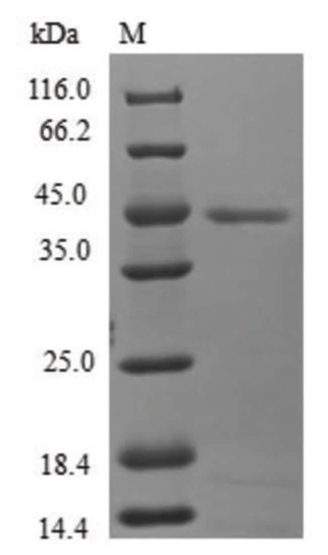 enQuireBio™Recombinant Human Mitochondrial fission process protein 1 1mg enQuireBio™Recombinant Human Mitochondrial fission process protein 1