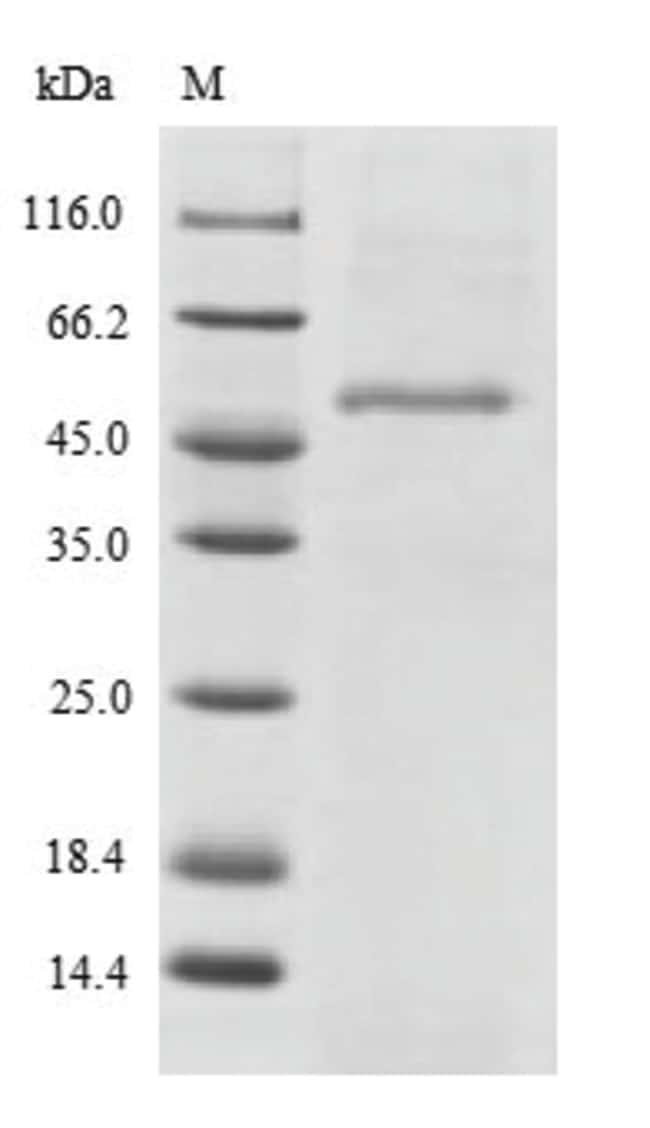 enQuireBio™Recombinant Human Endophilin-B2 Protein 1mg enQuireBio™Recombinant Human Endophilin-B2 Protein