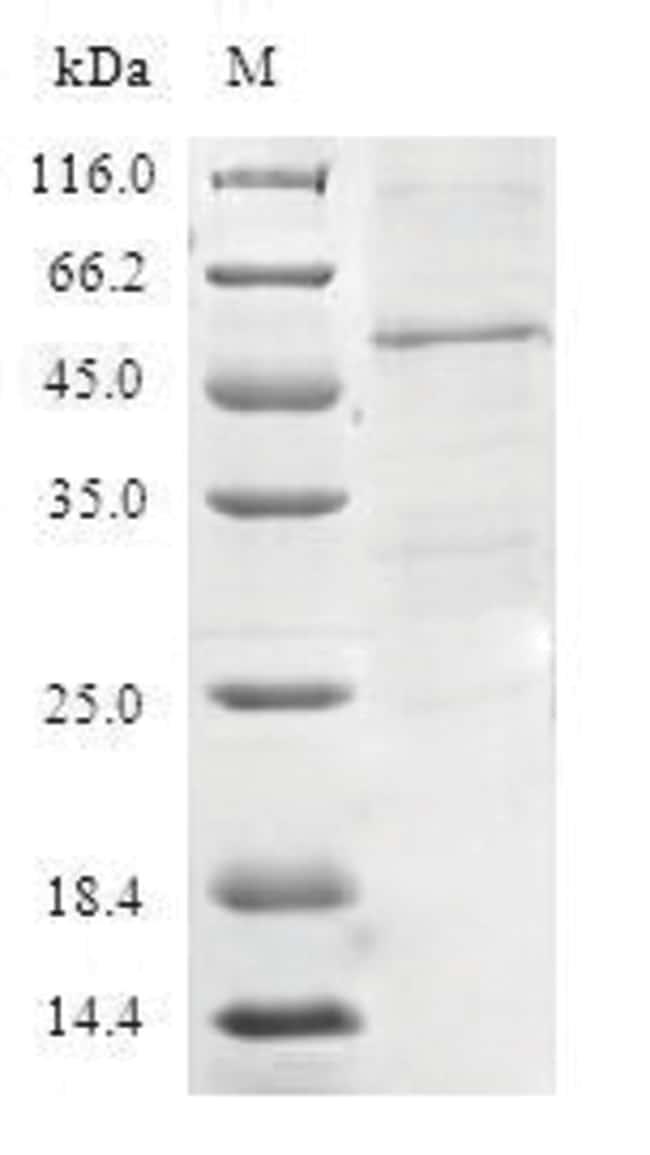 enQuireBio™Recombinant Human TIMM21 Protein 500μg enQuireBio™Recombinant Human TIMM21 Protein